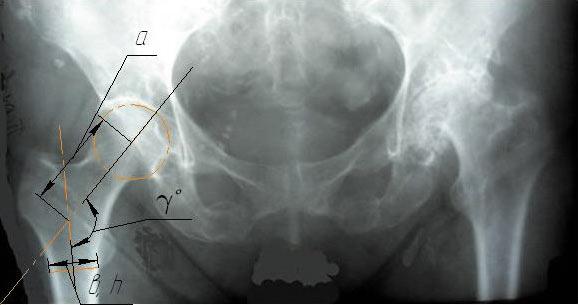 Рис. 1. Рентгенограмма тазобедренного сустава. Интересующие нас размеры: ?— угол наклона оси головки относительно ножки бедренной кости, а— расстояние от центра головки до оси ножки, измеренное полинии наклона головки, в и h— толщина и ширина основания ножки эндопротеза соответственно