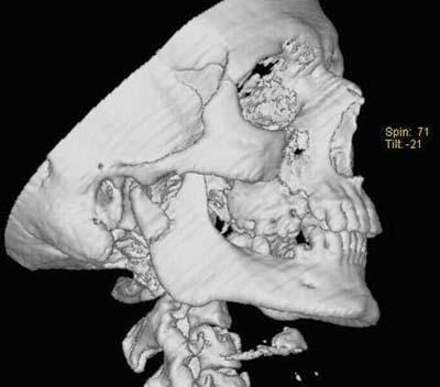 Рис. 2. Компьютерная томография нижний челюсти