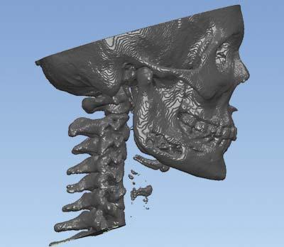 Рис. 3. Модель черепа